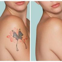 Remove Tattoos Without Laser and Pain